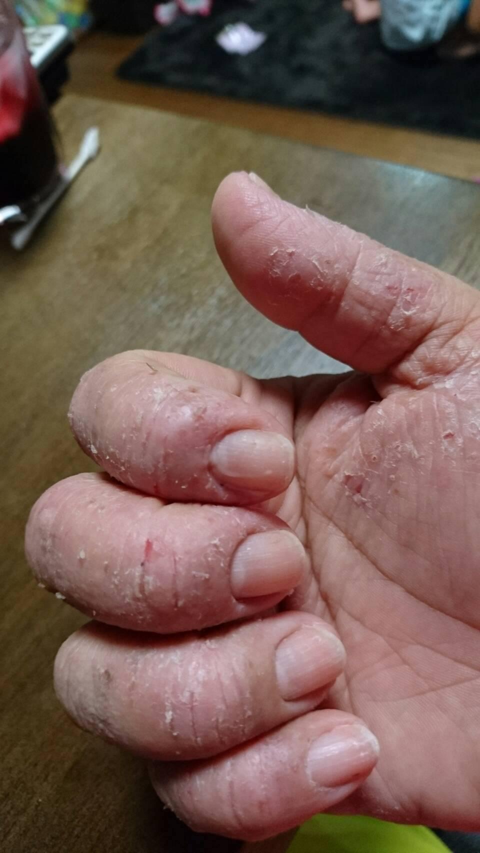 アロマでかぶれた手